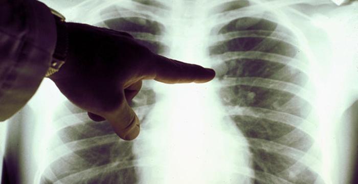 Antiöstrojen ilaçlar akciğer kanserinde kullanılabilir mi?