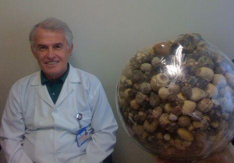 Hastalarının Safra Keselerinden Çıkan Taşlarla Koleksiyon Oluşturdu