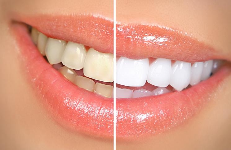 Piyasada Satılan Diş Beyazlatma Ürünlerine Dikkat