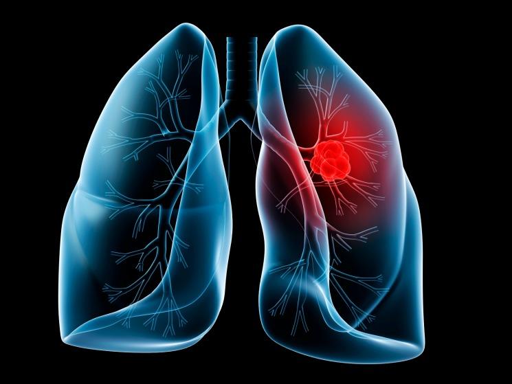 Akciğer Kanseri Azalıyor Ama!