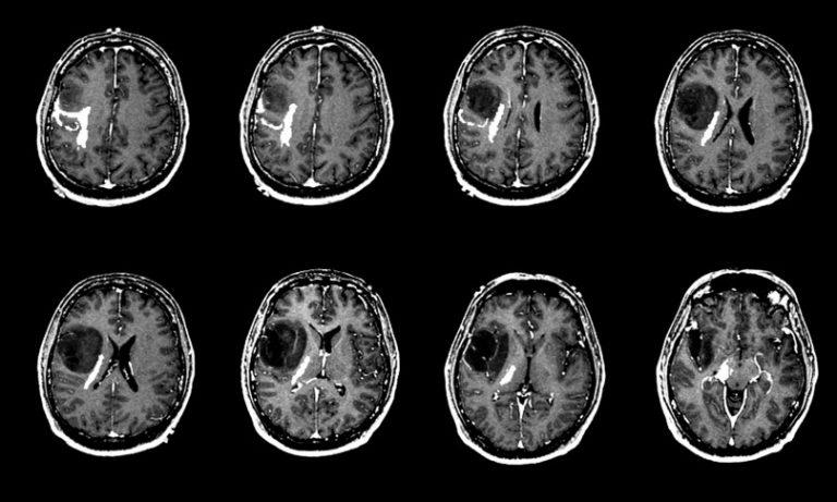 Beyin Tümörü Parasızlık Nedeniyle Araştırılamıyor