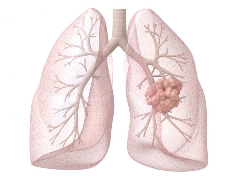 Akciğer Kanseri Tedavisinde Gelişmeler Var!